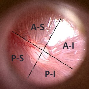 Quadrants of tympanic membrane