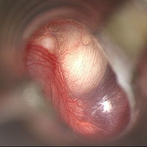 Congenital cholesteatoma of the middle ear