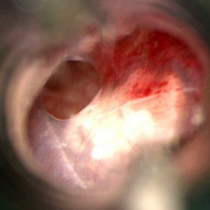 Tympanosclerosis with perforation of the tympanic membrane