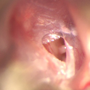 Marginal perforation of the tympanic membrane